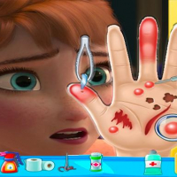 Anna frozen Hand Doctor: Fun Games for Girls Onlin